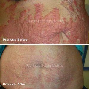Psoriasis Treatments - Psoriasis Eczema Clinic
