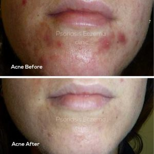 Acne Treatments - Psoriasis Eczema Clinic