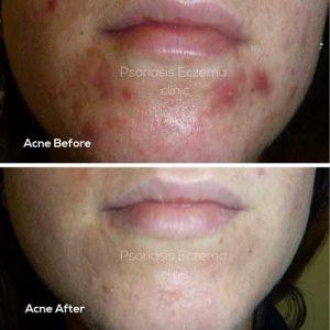 Acne Treatments - Psoriasis Eczema Clinic