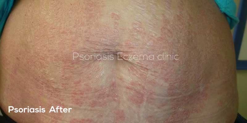 Photo of Psoriasis After Treatment