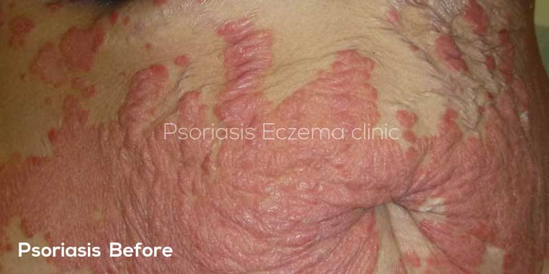 Psoriasis Before Treatment Image