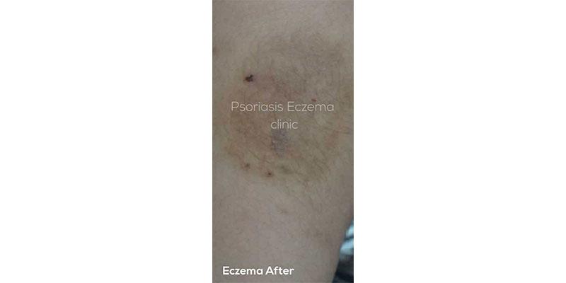 Eczema After Treatment