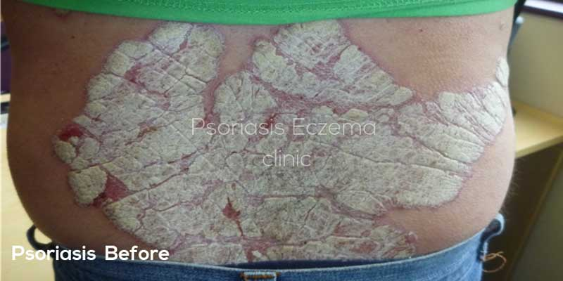 Psoriasis Before Treatment Photo