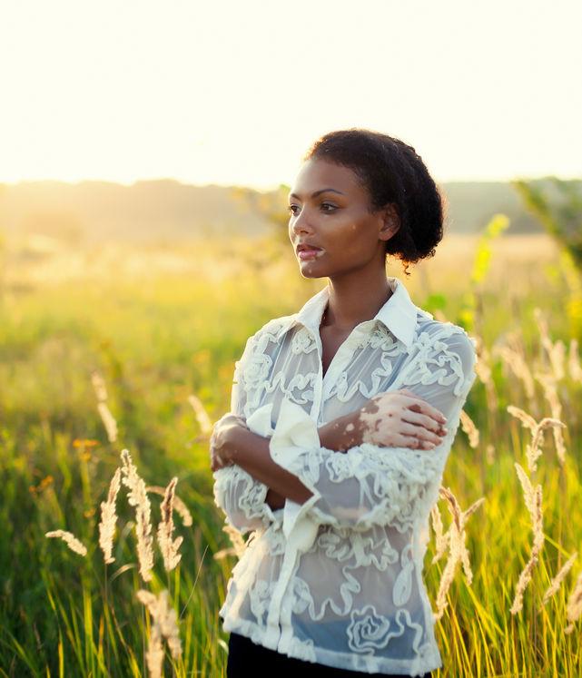 Vitiligo – The Symptoms & Triggers