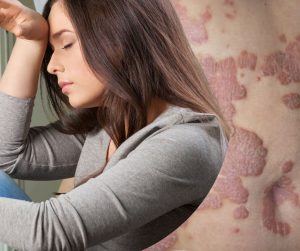 Stress Triggering Your Skin