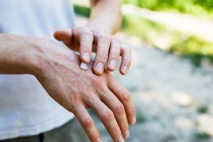 cream for Eczema