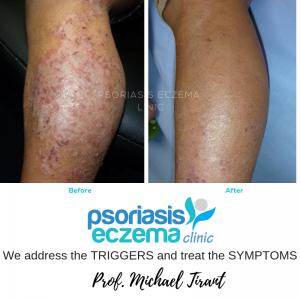 Eczema Treatment - Psoriasis Eczema Clinic