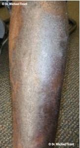 plaque-psoriasis-1