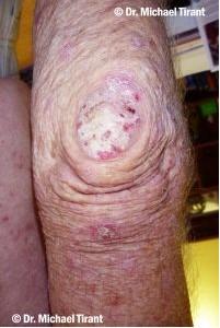 plaque-psoriasis-10