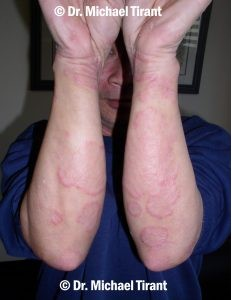 Plaque Psoriasis 11