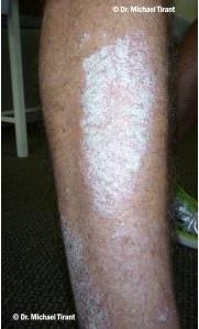 plaque-psoriasis-2