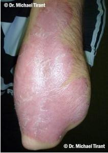 plaque-psoriasis-7