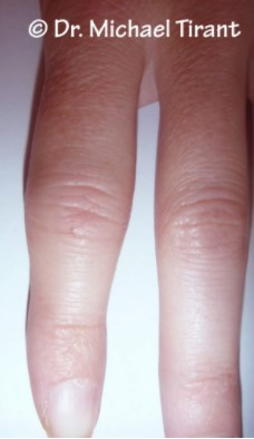 PsN 1 Finger
